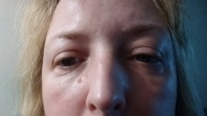 allergic-reaction-2